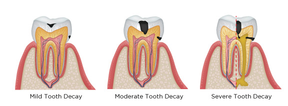 tooth-decay.jpg